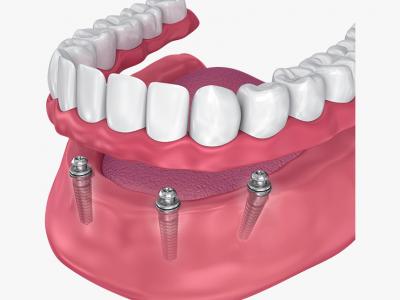 proteza pe implant