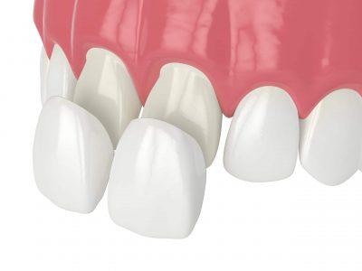 dental-veneer-diagram-scaled