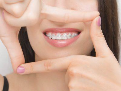 ortodontie adulti
